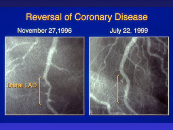 reversal of coronary disease angiogram