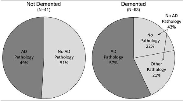 pathology demented brains pie charts